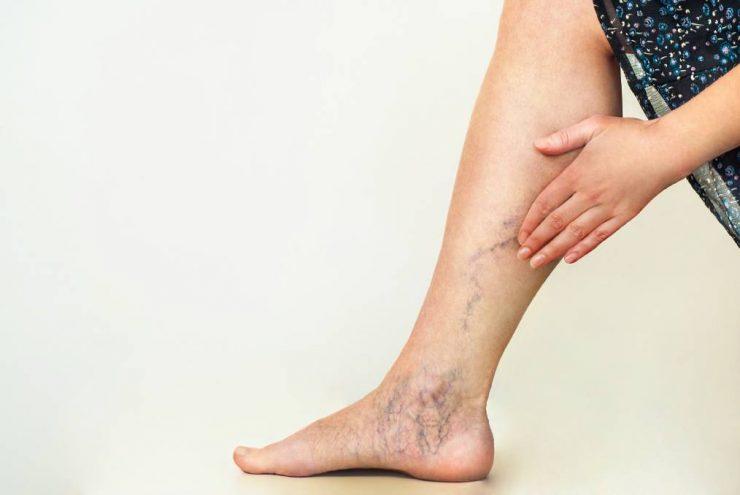 varicele fac durerea picioarelor