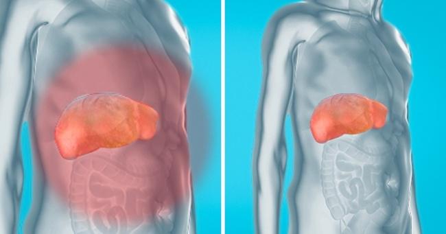 detoxifierea rinichilor natural sarcoma cancer of the bone
