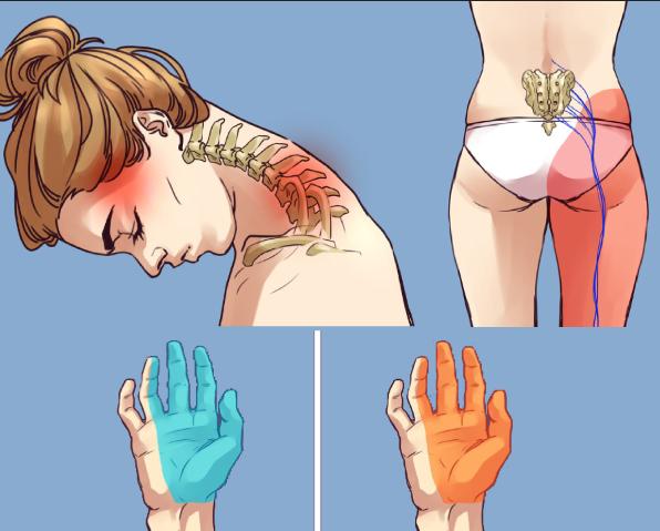 de ce doare mâinile din umeri)