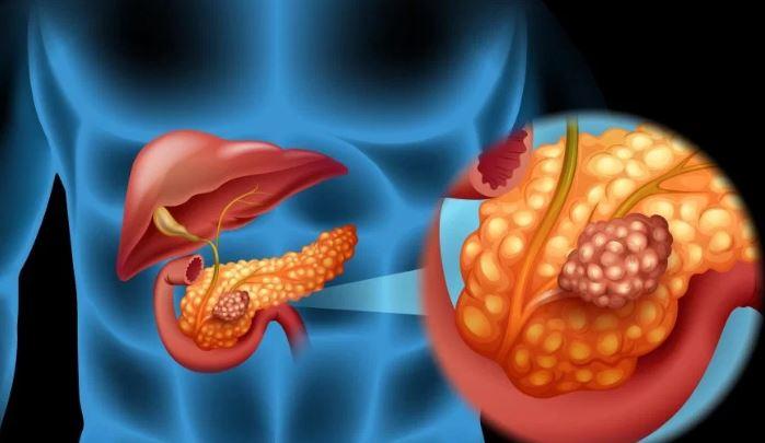pierderea de grăsime din pancreas