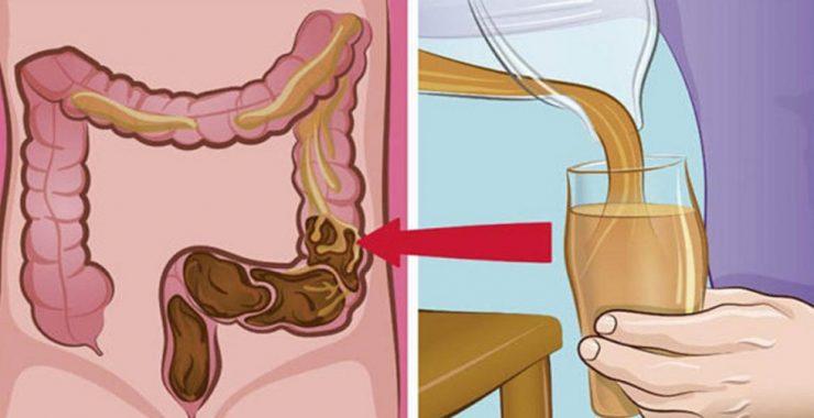 cum să vă detoxifiați colonul în mod natural)
