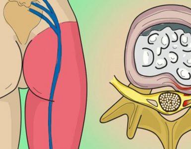 nervul-sciatic